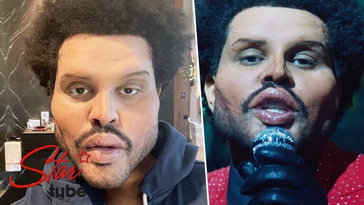 The Weekend shocks fans over new look after plastic surgery